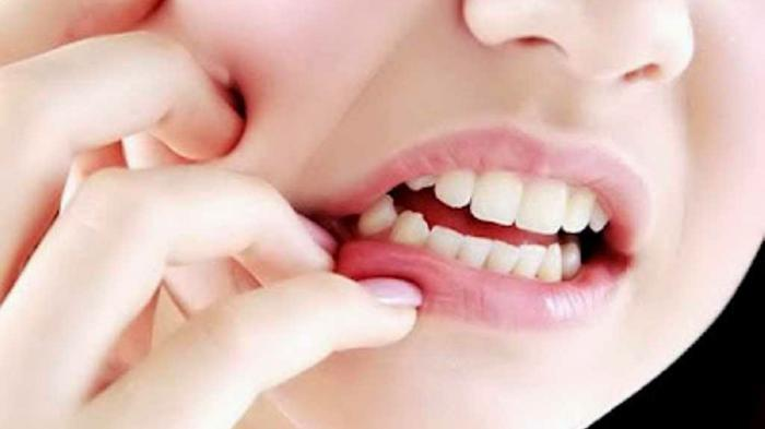 Tips Mengatasi Sakit Gigi