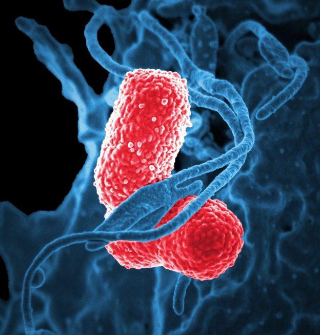 Cara Menjaga Bakteri Baik Pada Usus